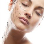 Косметология , нити для подтяжки лица