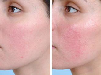 Псориаз на лице (фото)
