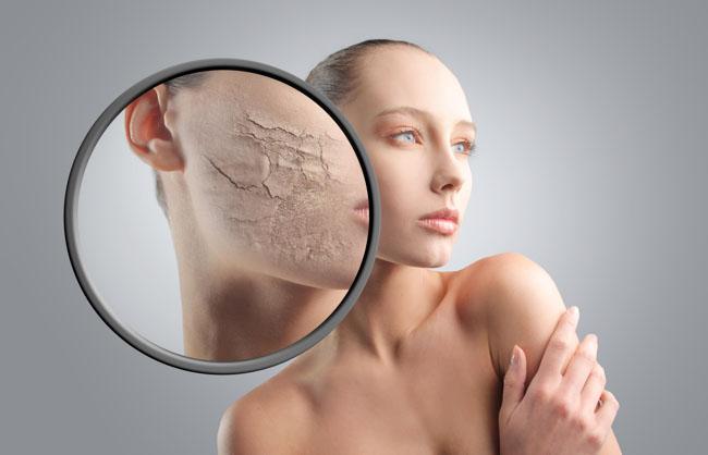 Лечение от прыщей если жирная кожа лица