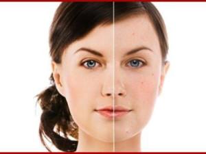Секреты Белоснежки: кремы для отбеливания кожи лица