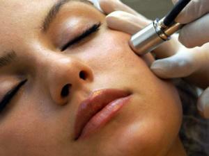 Кристаллическая и алмазная микродермабразия кожи лица