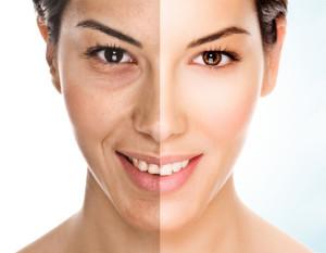 Алмазная микродермабразия кожи лица, что это такое