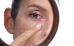 Пигментация на лице причины и лечение