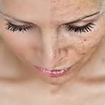 Пигментация кожи на лице: причины и лечение