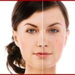 Кремы для отбеливания кожи лица – секреты Белоснежки