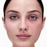 Розацеа на лице: симптомы ,причины появления и лечение