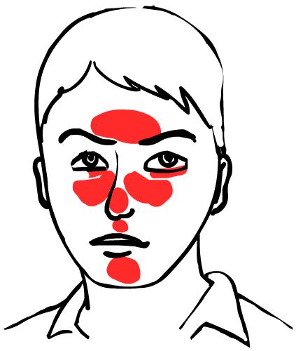 Что такое купероз кожи лица - причины и лечение