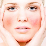 Что такое купероз на лице – причины и лечение!