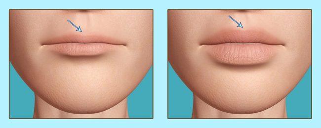 Увеличение губ гиалуроновой кислотой - процедура , препараты, прекрасный результат!