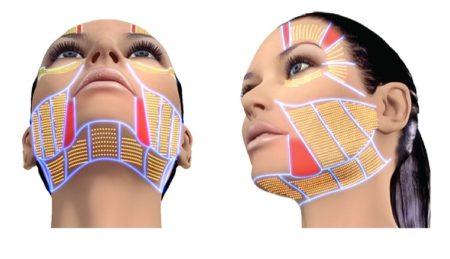 СМАС лифтинг подтяжка лица - ультразвуковой и хирургический методы