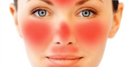Розацеа на лице - причины и лечение, как бороться с заболеванием!